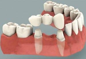 Instrumentos usados para la estética dental